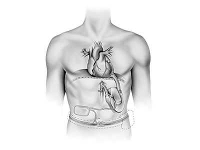 "<a id=""total-artificial-heart"">Total Artificial Heart</a>"