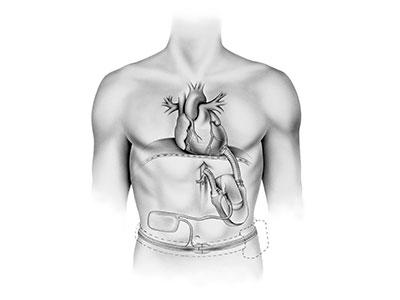 "<a id=""total-artificial-heart"">Total Artificial Heart</a>"