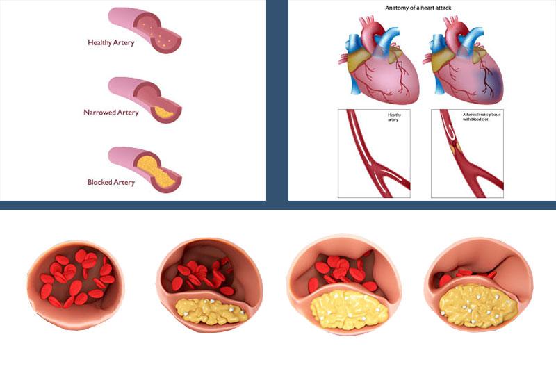 Cardiac Surgeries