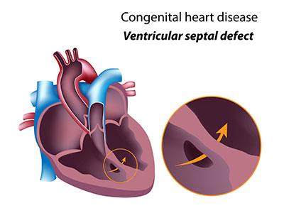 """<a id=""""cardiac-ablations"""">Cardiac Ablations</a>"""