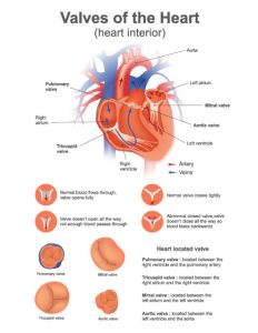 """<a id=""""transcatheter-valve-replacement"""">Transcatheter Valve Replacement</a>"""