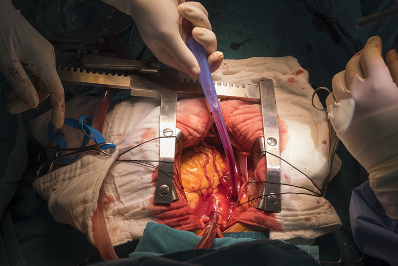 Traditional Open Heart Surgery