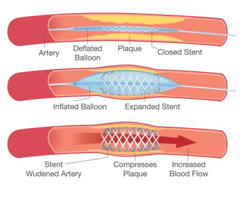 "<a id=""angioplasty-and-vascular-bypass"">Angioplasty and Vascular Bypass</a>"
