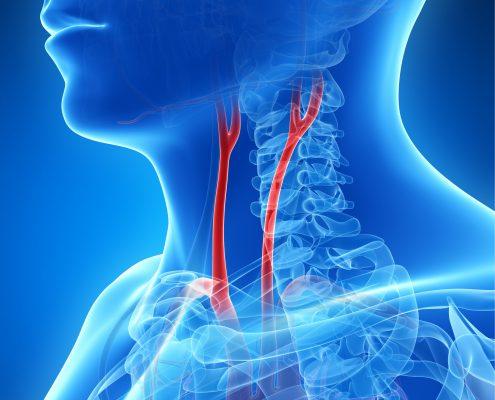 "<a id=""carotid-endarterectomy"">Carotid Endarterectomy</a>"
