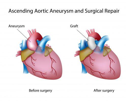 "<a id=""open-aneurysm-repair"">Open Aneurysm Repair</a>"