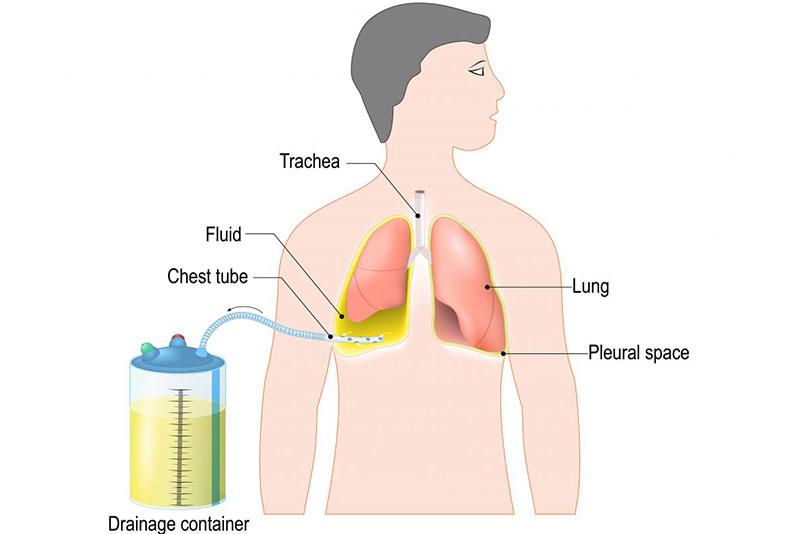 """<a id=""""pleural-chest-tube-placement"""">Pleural Chest Tube Placement</a>"""