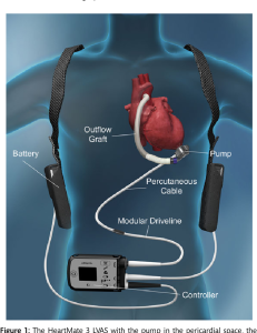 """<a id=""""ventricular-assistive-devices"""">Ventricular Assistive Devices</a>"""