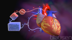 """<a id=""""traditional-open-heart-surgery"""">Traditional Open Heart Surgery</a>"""