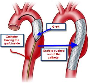 """<a id=""""aortic-surgeries"""">Aortic Surgeries</a>"""