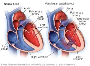 """<a id=""""ventricular-septal"""">Ventricular Septal Defect (VSD)</a>"""